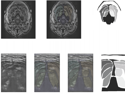 Cervical Muscle | IEEE DataPort